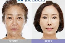 韩国好的面部提升医院各有特色,看完这篇文章你再做选择!
