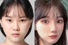 韩国开后眼角专业医院分享,拿着案例看前后对比图谁更好?