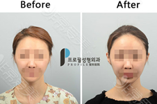 耳朵贴脑怎么矫正?韩国医院手术治疗步骤分这几步进行!
