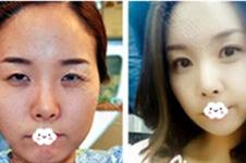 双眼皮修复毁的更严重了!韩国眼部7层缝合哪位医生可以做
