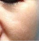 皮肤科-水光乳液 前后照片