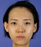 韩国BK整形外科双鄂整形前后对比照片