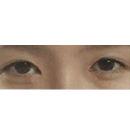 韩国青春整形外科-珍珠双眼皮手术前后对比图