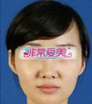 韩国BK整形外科隆鼻对比案例
