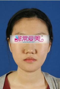 韩国BK整形外科下颚前突矫正对比案例