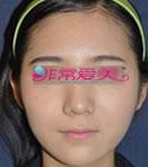 韩国4月31日整形外科面部填充手术案例