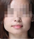 下颌角整形