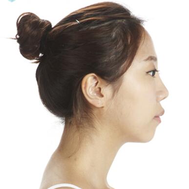 面部综合整形手术对比案例_术前