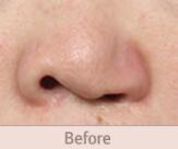 唇腭裂第二次鼻部再建整形對比案例