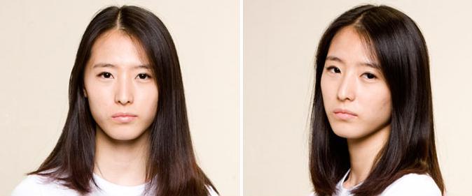 面部综合整形术前照片