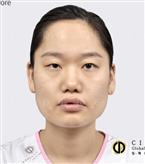 韩国灰姑娘眼综合+V-line手术对比图