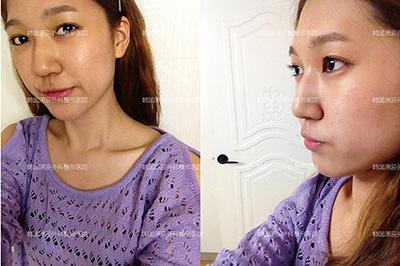韓國原辰整形外科鼻整形對比