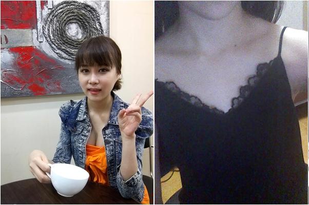 韓國原辰整形外科隆胸手術案例