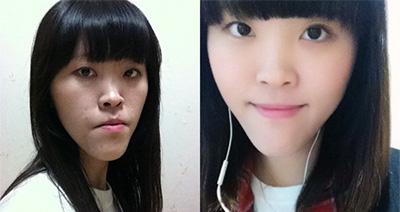 韓國樸原辰雙鄂手術對比案例
