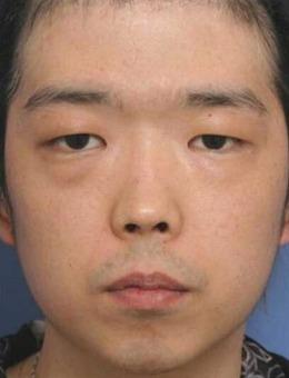 福田庆三男士整形案例照片,双眼皮+隆下巴足够改变一个人!