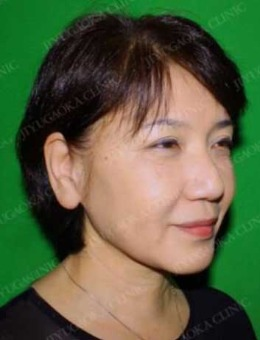 日本自由之丘美容整形外科面部提升手术前后对比照片_术后
