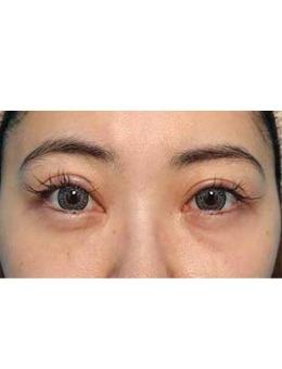 日本美真美容整形外科眼袋去除前后对比照片