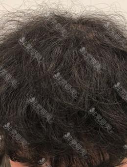 韩国真满毛发移植医院植发案例