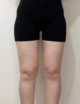 大腿環吸分幾個部位?韓國2000cc抽脂能瘦到這么多厘米_術前