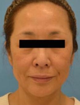 日本鈴木芳郎院長面部拉皮手術對比照片_術后