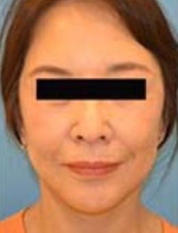 日本鈴木芳郎院長面部拉皮手術對比照片_術前