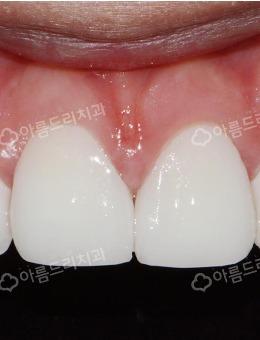韓國安特麗牙科牙齒矯正案例_術前