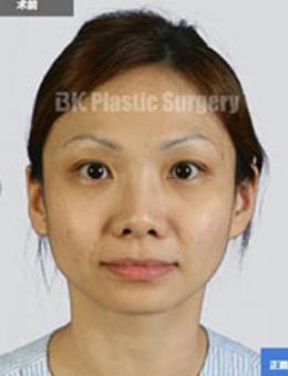 韩国BK整形外科V-LINE整形前后对比照片