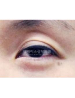 韩国秀美颜医院眼睑矫正手术案例