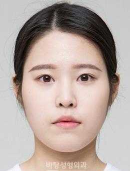 韓國芭堂整形外科醫院下頜角整形案例對比圖_術后