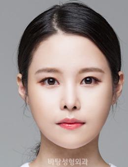 韓國芭堂整形外科醫院下頜角整形案例對比圖_術前