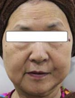 日本Noel諾埃爾醫院保志名勝面部提升前后對比照片_術前