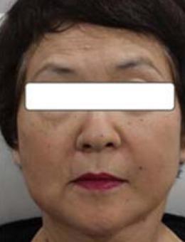 日本Noel諾埃爾醫院保志名勝面部提升前后對比照片_術后
