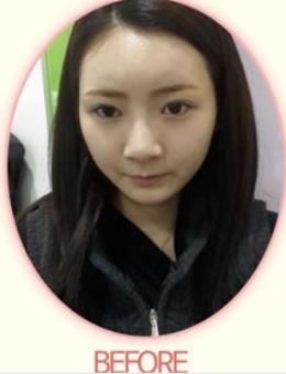 韓國秀美顏鼻部整形手術恢復日記_術后