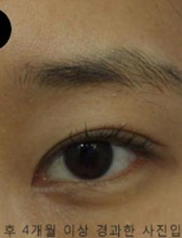 韓國SONE整形外科眼部手術對比案例_術前