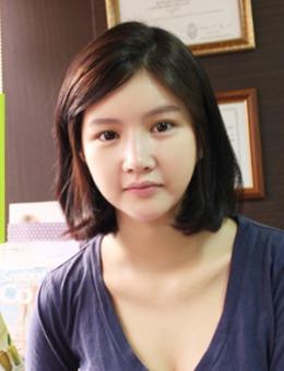 韓國SONE醫院輪廓+鼻整形手術過程分享!_術前