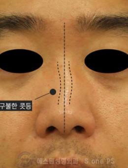 韓國SONE整形外科男士鼻矯正手術對比案例_術后