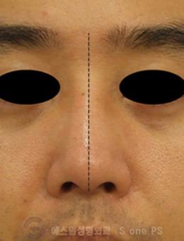 韓國SONE整形外科男士鼻矯正手術對比案例_術前