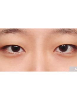 韩国ppeum整形外科眼部综合案例对比