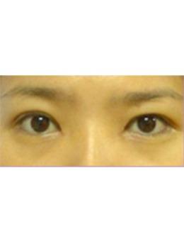 韩国美人制造整形外科眼部手术对比案例