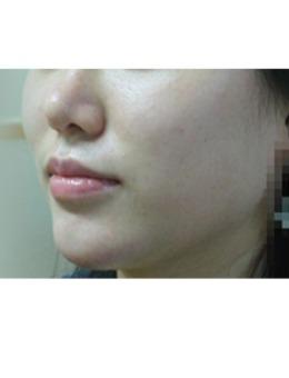韩国美人制造整形外科面部吸脂手术案例