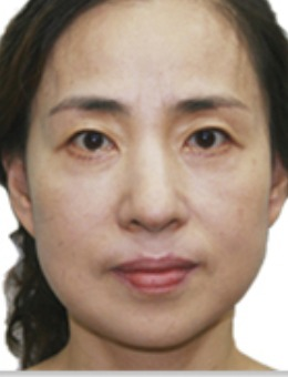 韓國愛特樂抗衰提升對比案例