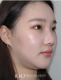 韩国纽莱茵整形外科面部吸脂案例日记_术后