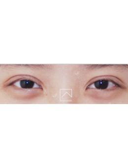 韩国misoline医院肉条眼修复案例对比_术后