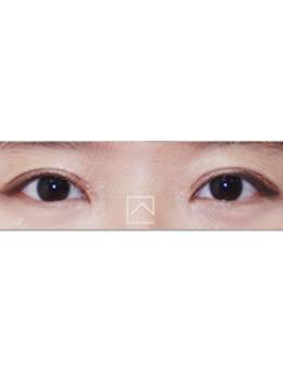 韩国misoline医院肉条眼修复案例对比_术前