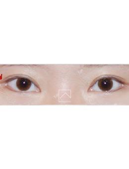 韩国misoline医院外眼角修复六个月效果_术后