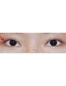 韩国misoline医院外眼角修复六个月效果_术前