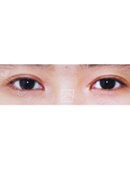 韩国misoline医院双眼皮疤痕修复对比_术后
