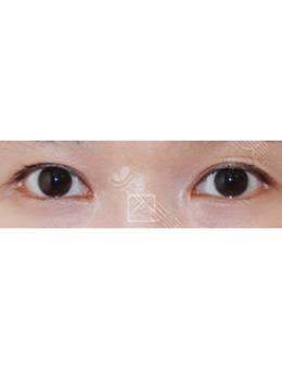 韩国misoline医院双眼皮疤痕修复对比_术前