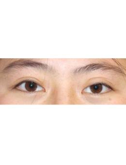 韩国李喜文埋线双眼皮修复案例对比_术后