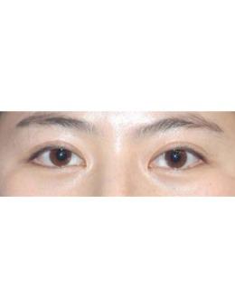 韩国李喜文埋线双眼皮修复案例对比_术前